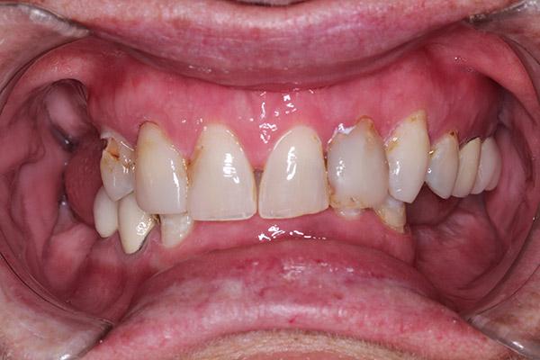 Implant Dentist in Lexington KY