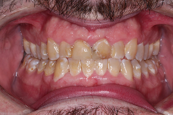 Family Dentist Lexington