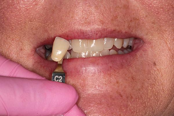 Dental Implants Lexington