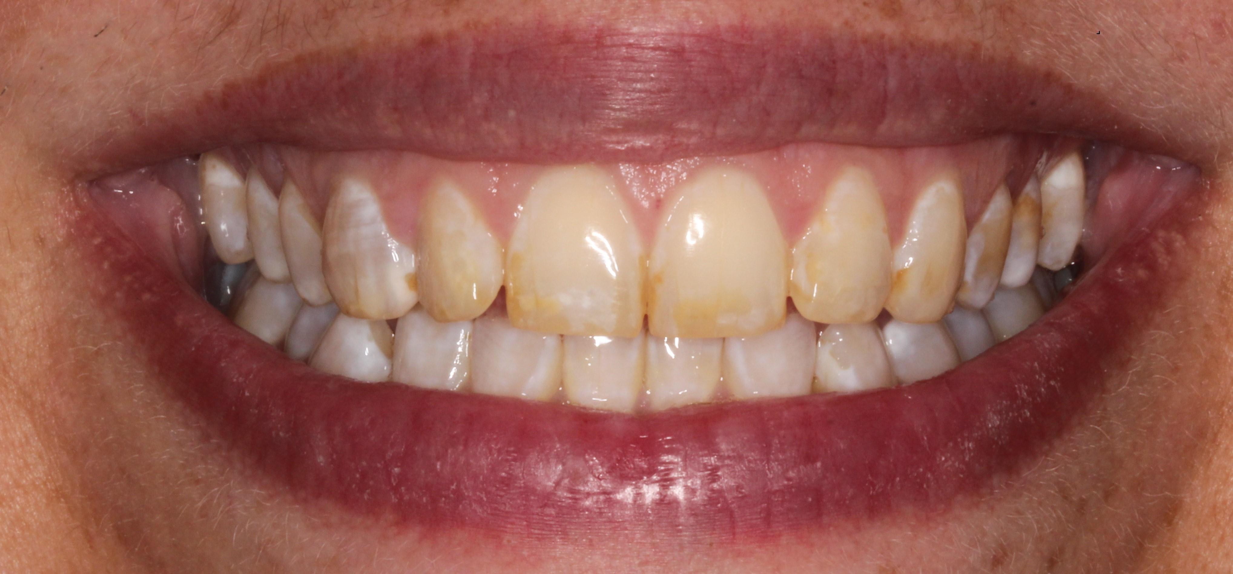 Lexington Dentist