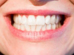 Dentist Lexington