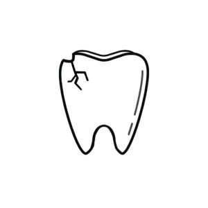Lexington KY Dentist | I Chipped a Tooth! What Can I Do?